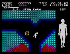 Fantastic Voyage ZX Spectrum 22