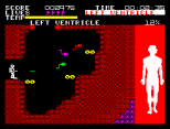 Fantastic Voyage ZX Spectrum 28